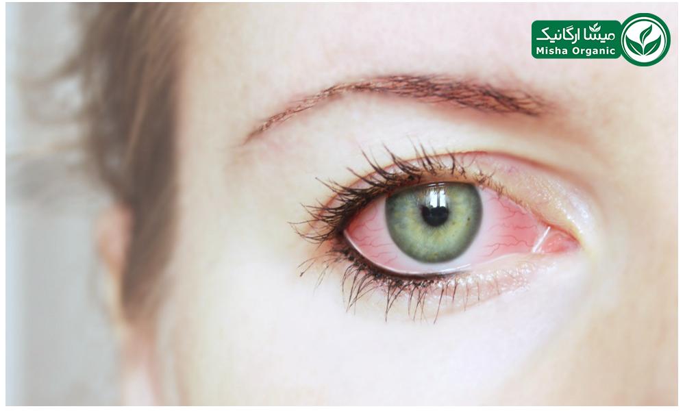 آویشن و برطرف کردن عفونت چشم